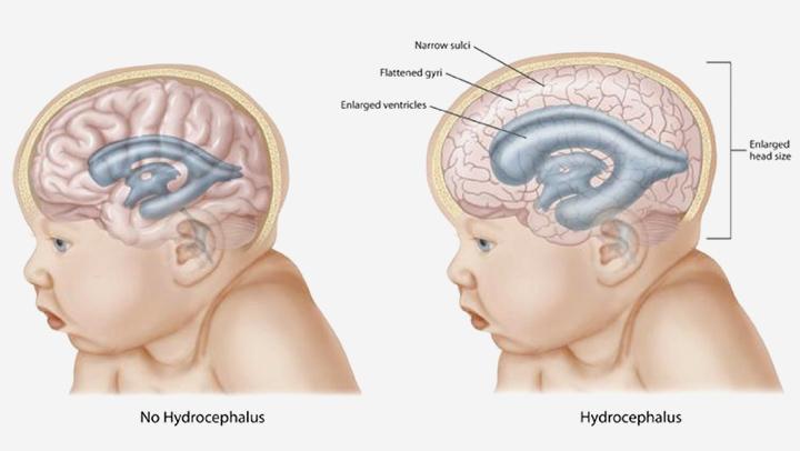 Hydrocephalus Bei Säuglingen Ursachen Symptome Und Behandlung