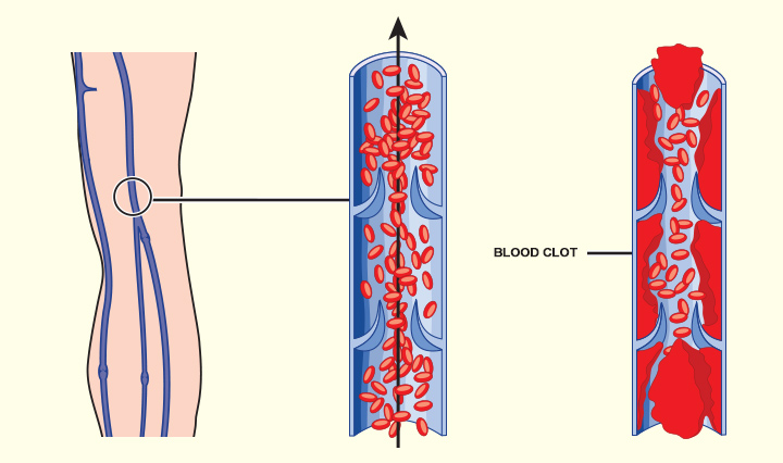 Causes Of Blood Clot During Pregnancy